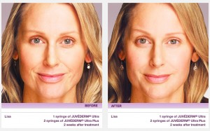 juvederm san francisco