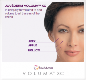 Announcement for launch of JUVÉDERM VOLUMA™ XC