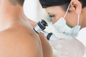 Moles: Everything You Need to Know
